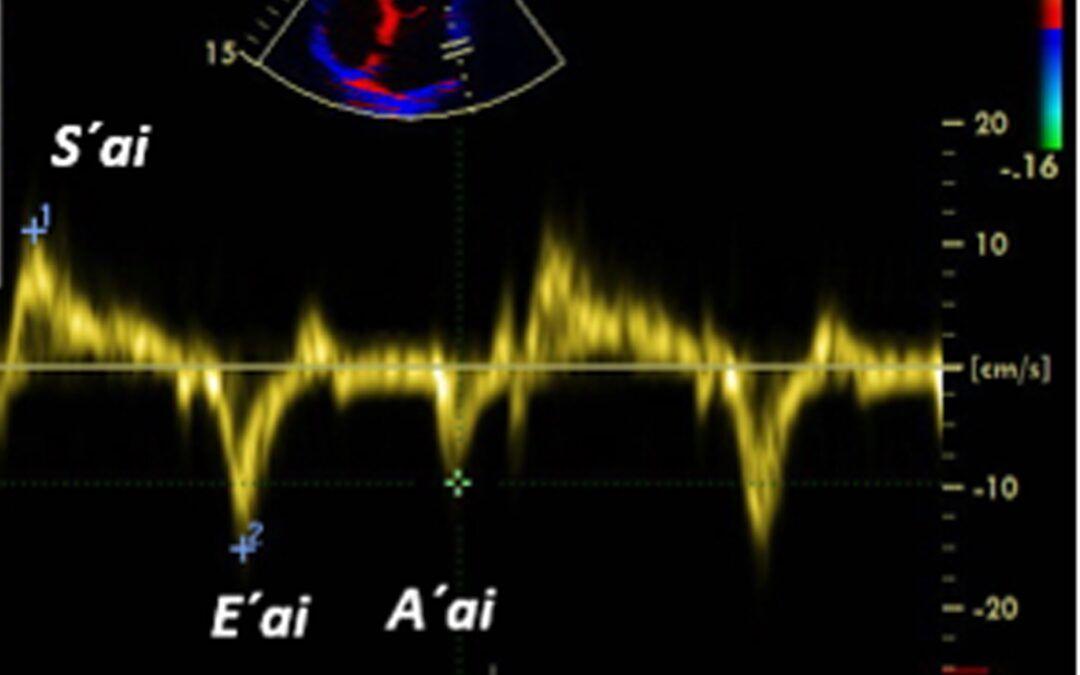 Investigación Nuevas Técnicas para la Evaluación de la Aurícula Izquierda