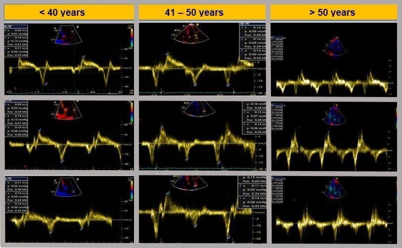 Doppler Tisular a nivel anular y basal de la Aurícula Izquierda según diferentes décadas